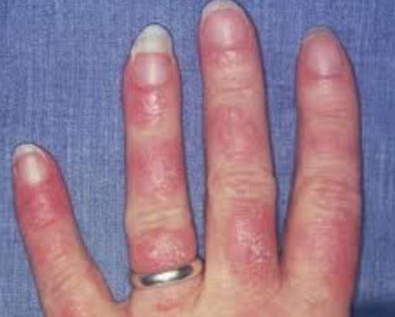 lupus-nails